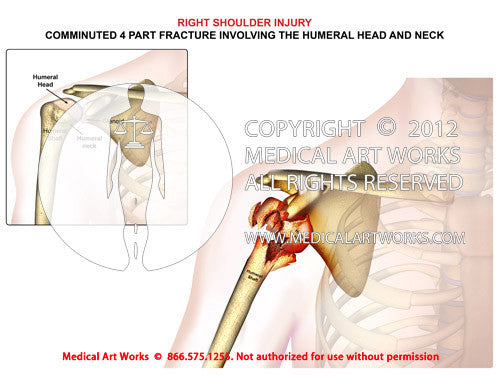 Right shoulder fracture involving the humeral head and neck