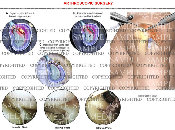 arthroscopic Surgery of shoulder