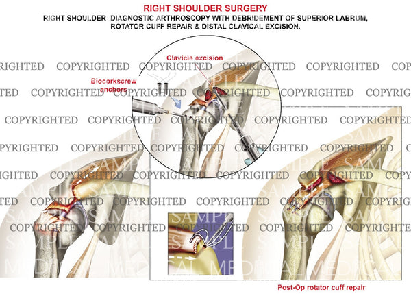 Right Shoulder Arthroscopy procedure 1