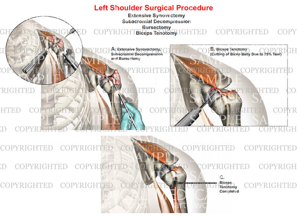 Left shoulder surgery - Synovectomy - Bursectomy - Biceps tenotomy - Subacromial decompression