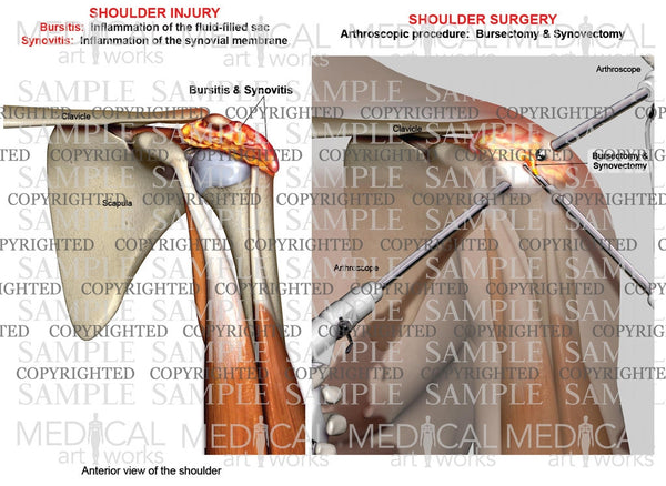 Arthroscopic surgery of bursitis and synovitis