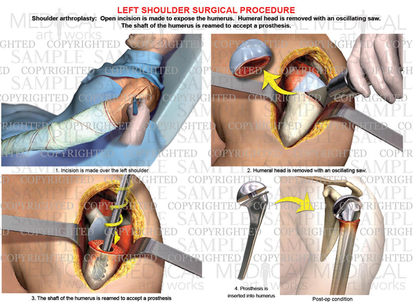 Left shoulder - Arthroplasty - Shoulder replacement