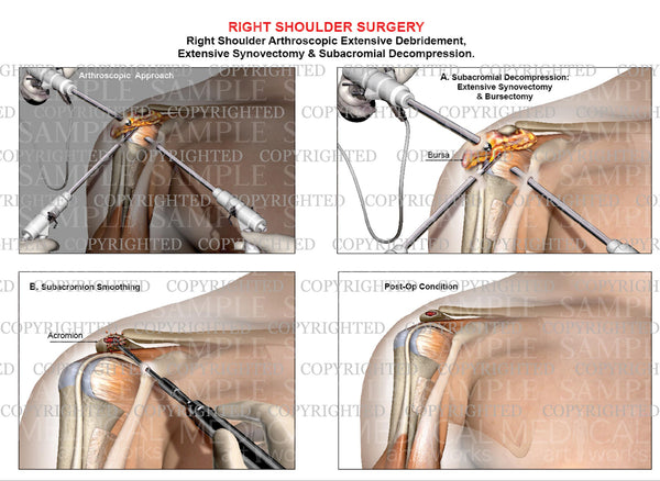 Right shoulder arthroscopic debridement - Synovectomy - Subacromial decompression