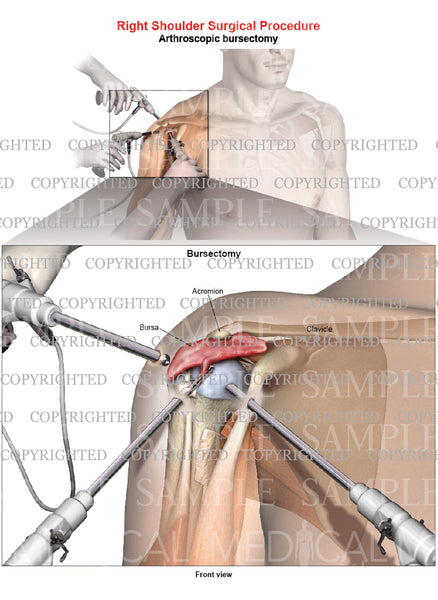 Right shoulder arthroscopic repair - Bursectomy - Male