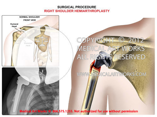 Right shoulder hemiarthroplasty with X-rays