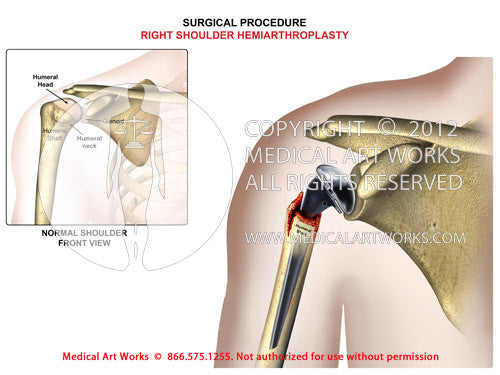 Right shoulder hemiarthroplasty