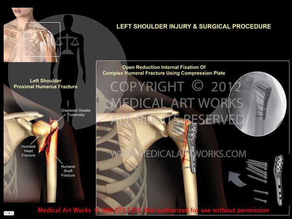 Left shoulder proximal humeral fracture+compression plate