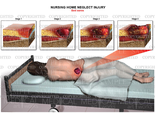 Nursing home neglect injury - Bed sores stages