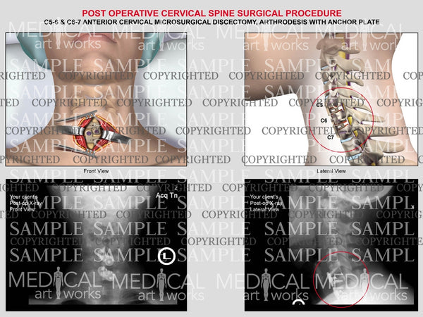 C5-6 & C6-7 anterior cervical microsurgical discectomy and fusion with post-op xrays