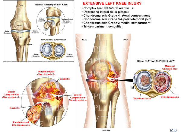 Extensive Left Knee injury