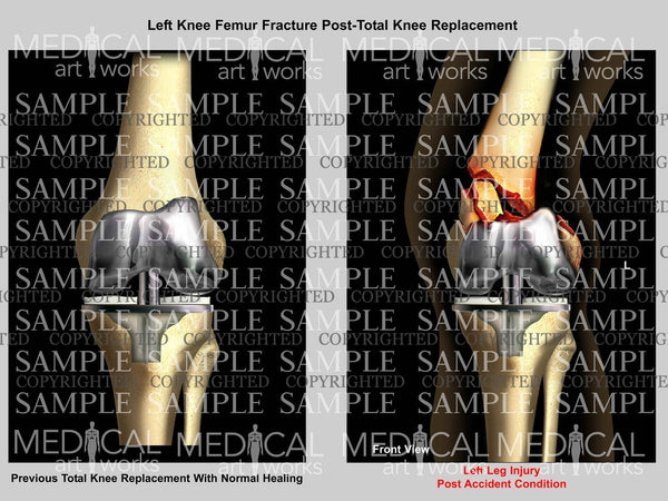 Left Knee Femur Fracture Post-Total Knee Replacement