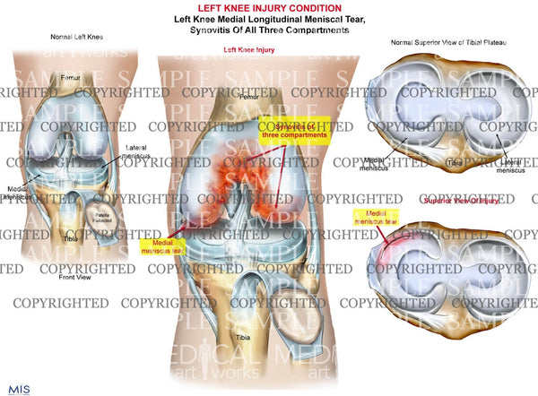 Left Knee Injury - Meniscal tear - Synovitis