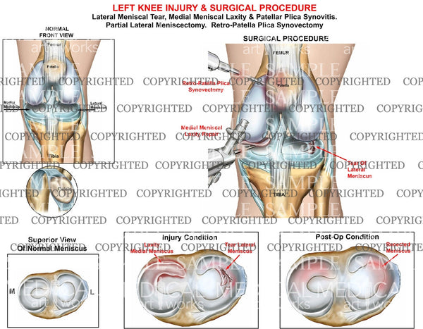 Left knee injury and surgical procedure