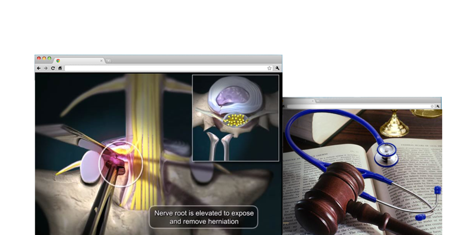 3D Medical Animations