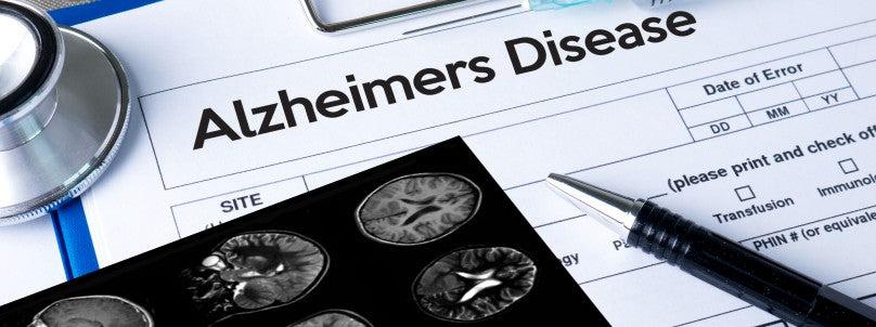 artificial-intelligence-detect-alzheimers-disease