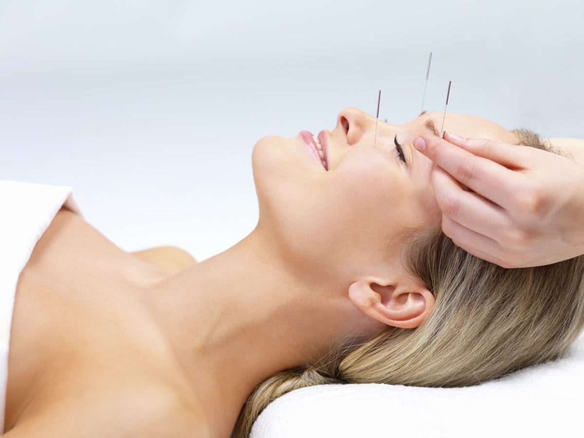Acupuncture vs Botox: What Face Acupuncture did for me