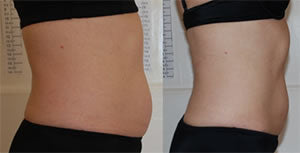 Before-After10 Lipo Laser Boot Camp