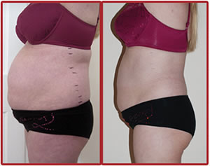 Before and After Lipo Laser Boot Camp
