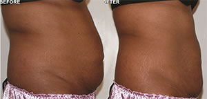 Before-After2 (1) Lipo Laser Boot Camp