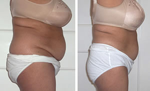 Before-After2 Lipo Laser Boot Camp