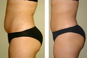 Before-After3 Lipo Laser Boot Camp