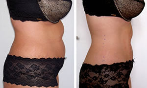 Before-After5 Lipo Laser Boot Camp