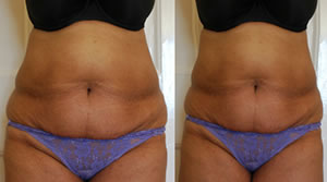 Before-After6 Lipo Laser Boot Camp