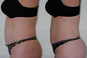 Before-After7 Lipo Laser Boot Camp