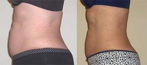 Before-After8 Lipo Laser Boot Camp