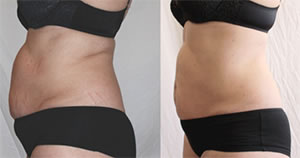Before-After9 Lipo Laser Boot Camp