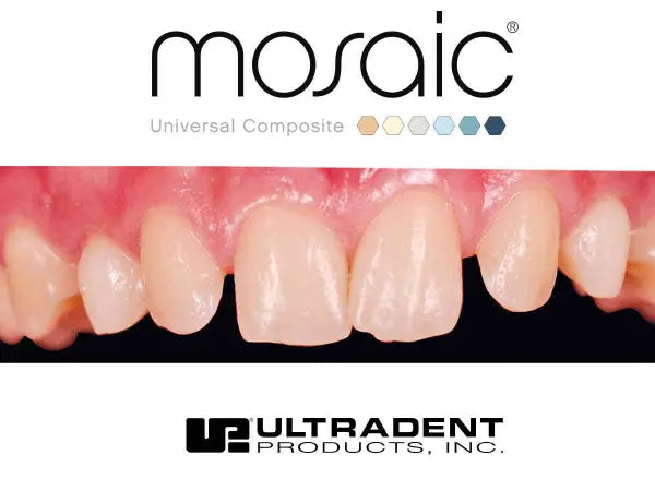 Ultradent Mosaic restoration before Anterior Restoration