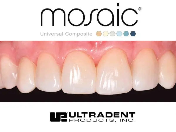 Ultradent Mosaic restoration after Anterior Restoration