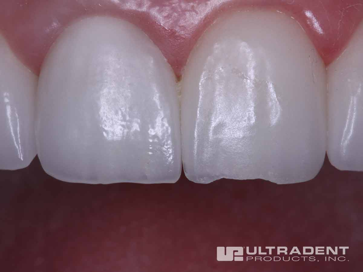 Before Ultradent Porcelain Repair