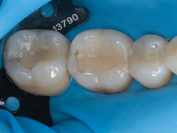 With rubber dam in place (PARO Non-Late Rubber Dam), pre-op view of wide Class II on first molar requiring replacement.