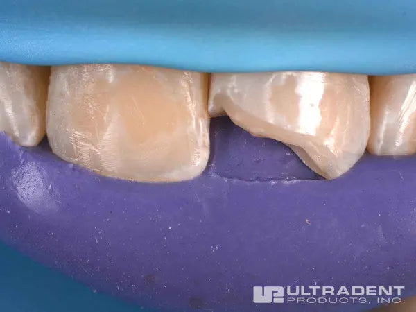 Ultradent Mosaic Restoration Procedure