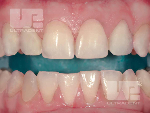 Before whitening with Opalescence Boost