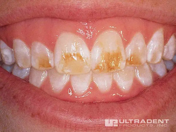 Teeth prior to application of Opalustre