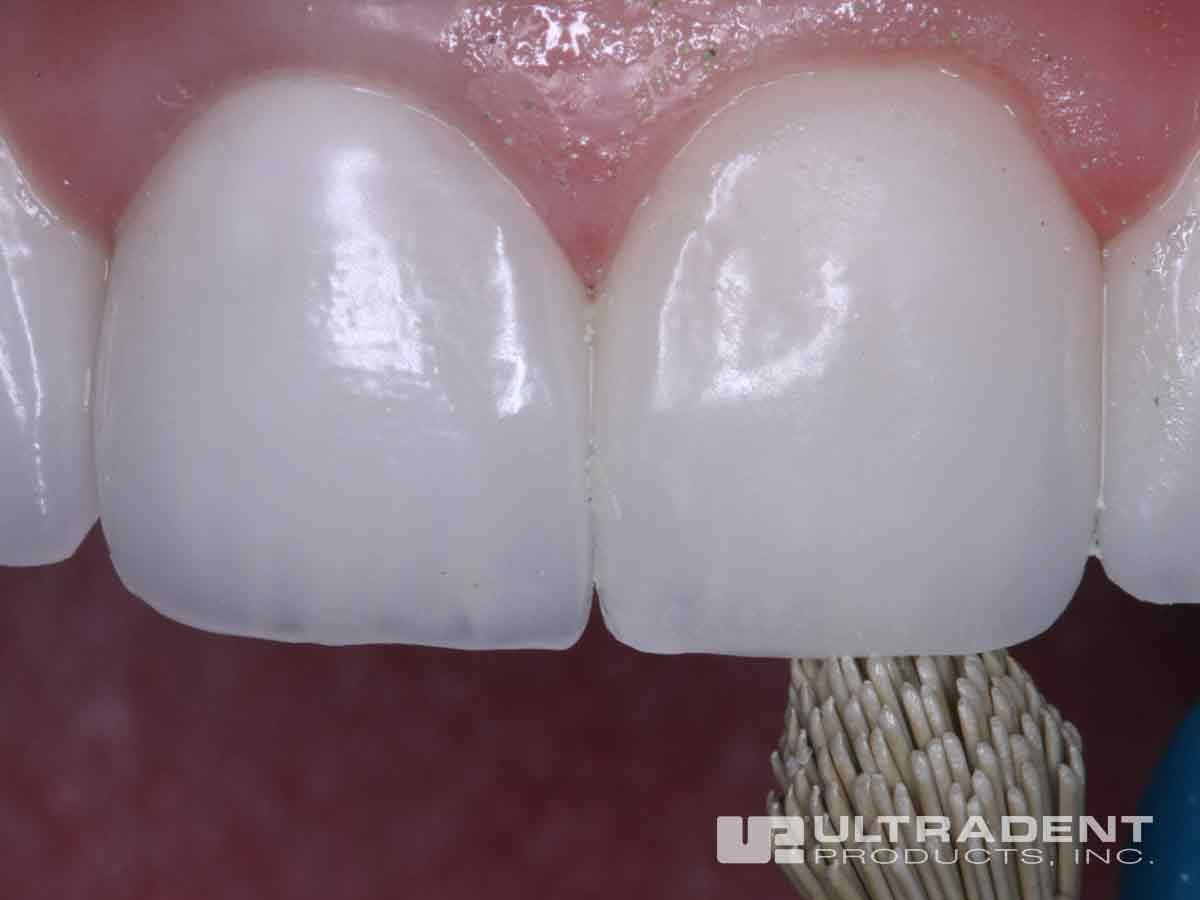 After Ultradent Porcelain Repair
