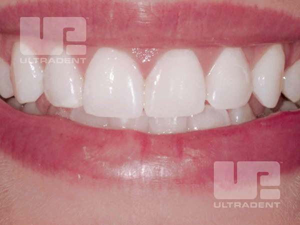 After whitening with Opalescence Boost