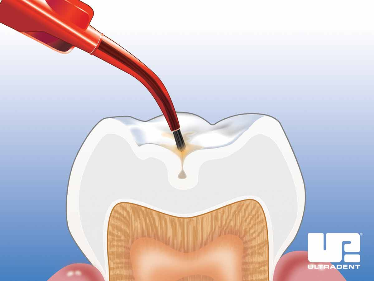 Place UltraSeal XT Hydro Sealant on the tooth