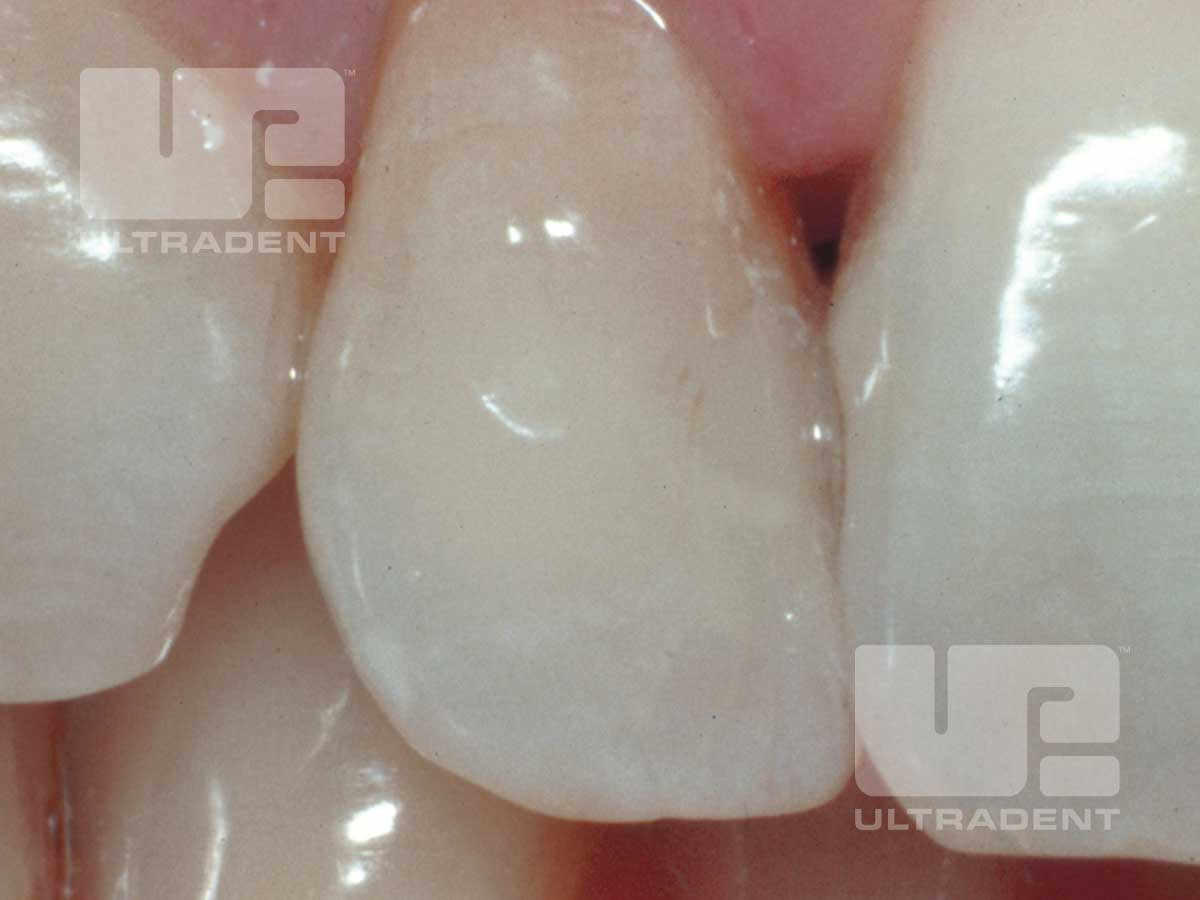 Opalescence Endo patient teeth after