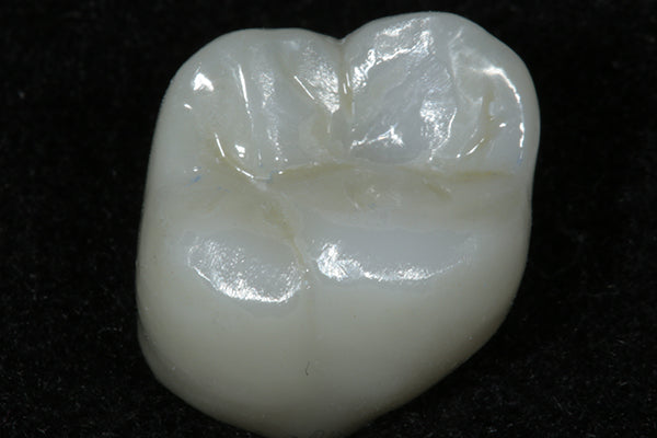 ASAP Indirect+ After Tooth Polished Clinical