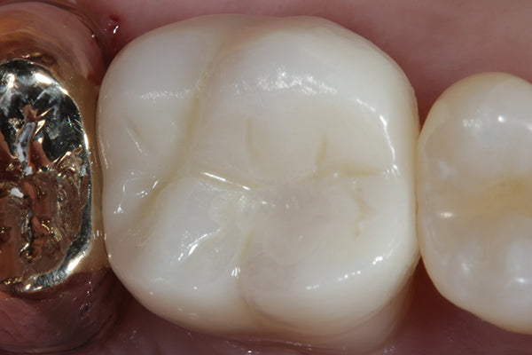 ASAP Indirect+ After Tooth Polished in Mouth