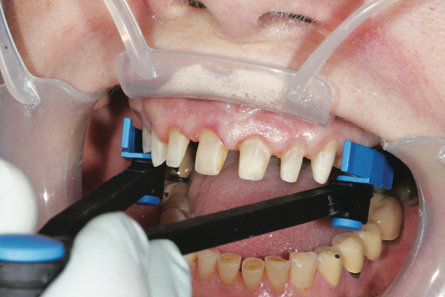 The Border-Lock Tray System includes a caliper to measure both the width and unique shape of the patient's arch.