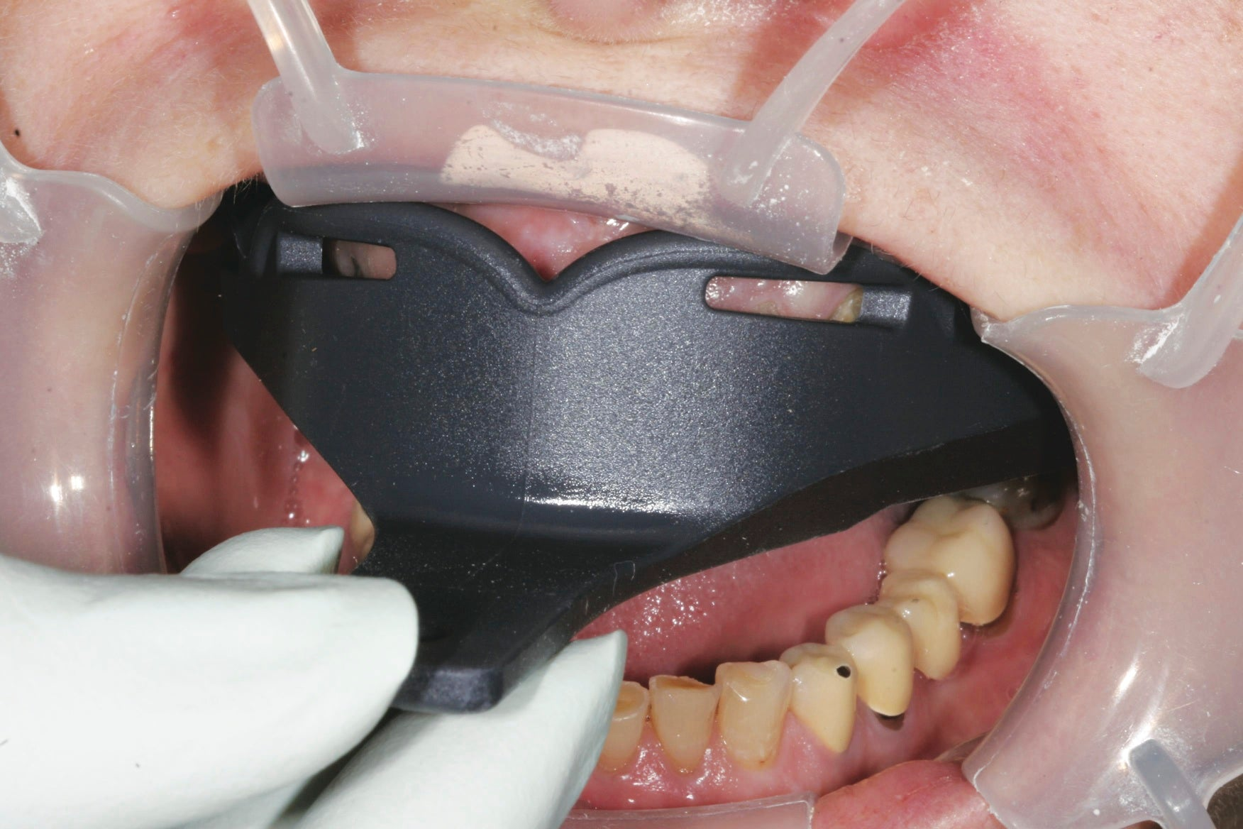 Try-in the Border-Lock tray prior to syringing impression material to ensure a correct fit.