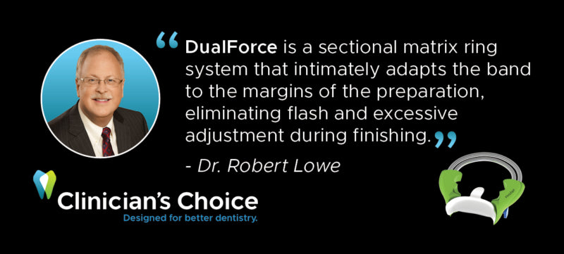 DualForce is a sectional matrix ring system that intimately adapts the band to the margin of the preparation, eliminating flash and excessive adjustment during finishing. Dr. Robert Lowe