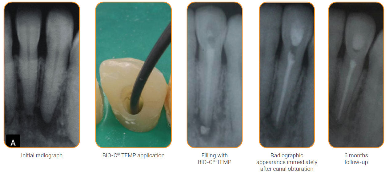 Initial radiograph, BIO-C TEMP application, Filling with BIO-C TEMP, Radiographic appearance immediately after canal obturation, 6 months follow-up
