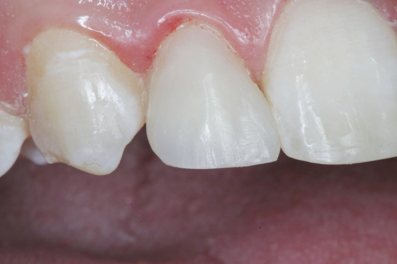 Contours Coarse Anatomy Trimmers After