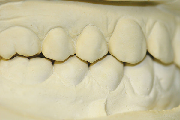 Counter-Fit Derived Model Closed Bite