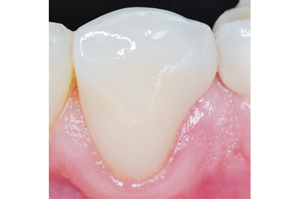 Final Polished Crown Intraoral